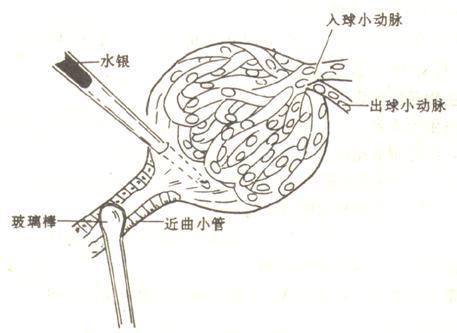 肾浊肿手绘细胞图