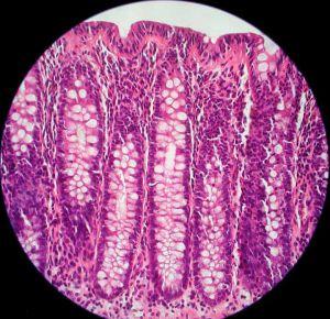 鼻粘膜细胞结构